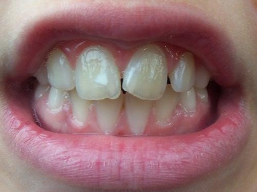 зубы после гигиены