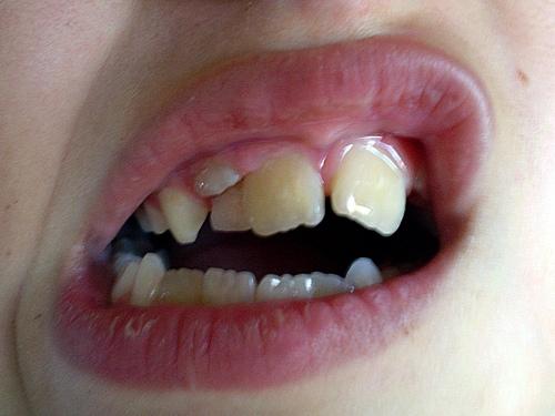 второй ряд зубов у ребенка
